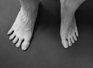 Toe Adduction and Abduction (1)